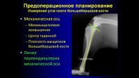 post-14521-0-21018400-1380614392_thumb.j